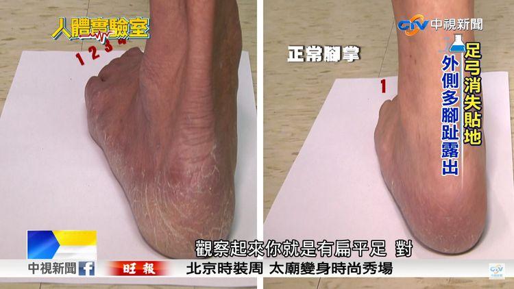 Detection of flatfeet-the tilted heel-2