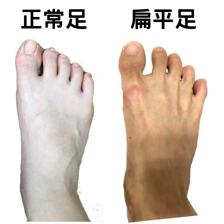 Flatfeet judgment-the front instep is wide and flat