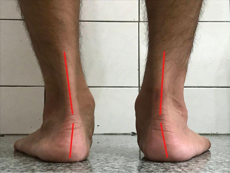 Detection of flatfeet-the tilted heel