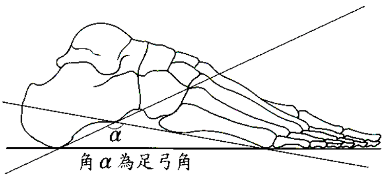 measurement of flatfeet's arch angle
