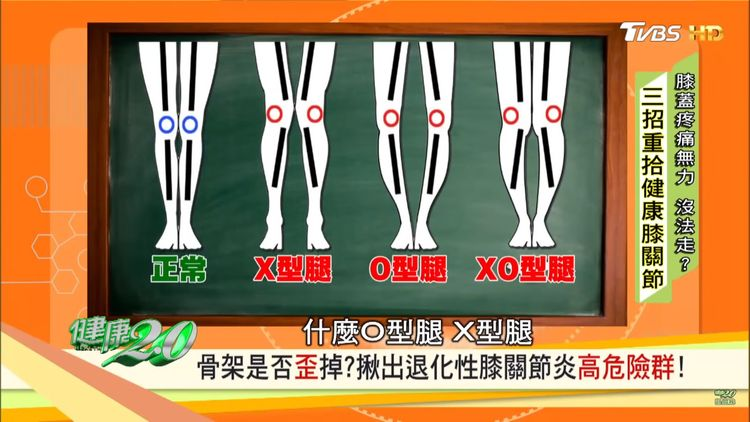 normal leg、knock knee、bow leg、he/she has both knock knee and bow leg