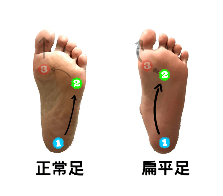 The route of gravity shifting-flatfeet's lateral longitudinal arch