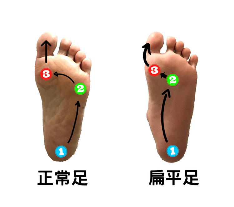 The route of gravity shifting-flatfeet & normal feet