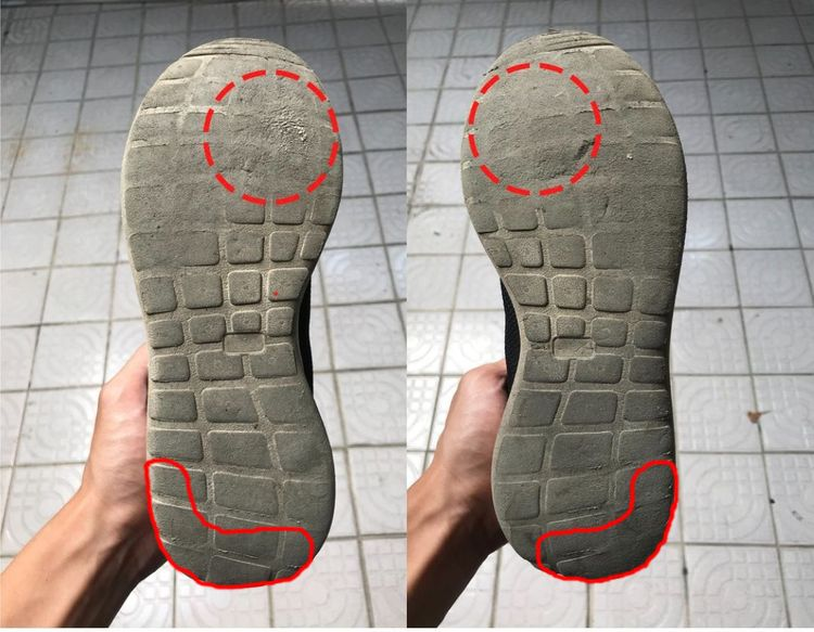 Sole's wear and tear of normal feet