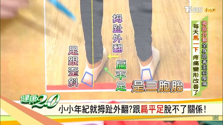Triplets of feet ache - tilted heel、flatfeet、hallux valgus