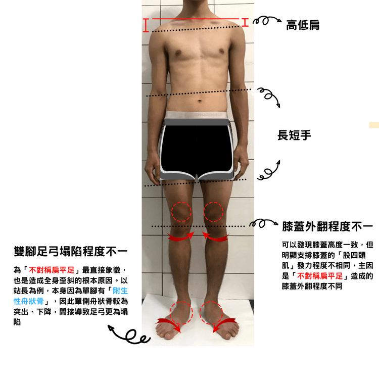 Illustrate the tilted body caused by asymmetric flat feet